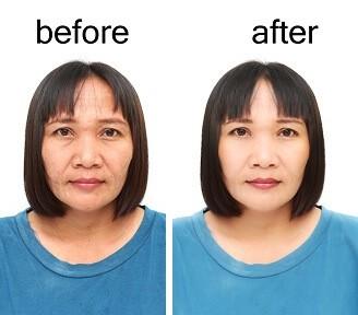 skin tightening lasers
