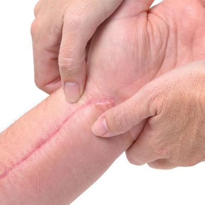 علاج ندوب ما بعد الجراحة