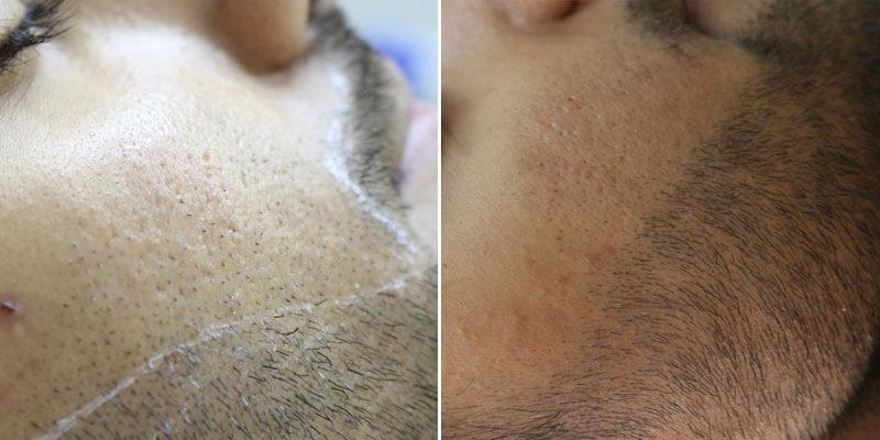 إزالة الشعر بالليزر