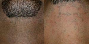 إزالة الشعر (7)
