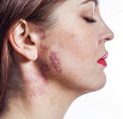 علاج الليزر لإزالة وحمات