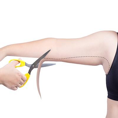 عملية إزالة الزائدة الجلدية